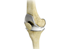 Total Knee Joint Replacement